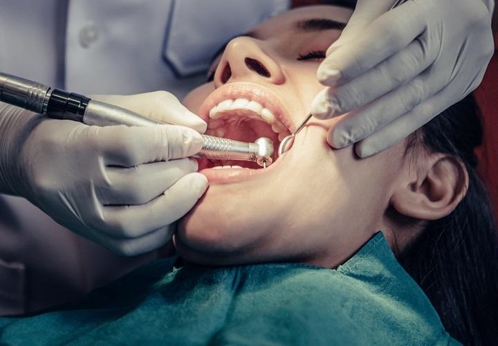 Jókai Dental Budapest - fogtömés